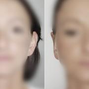 korekcja małżowiny usznej