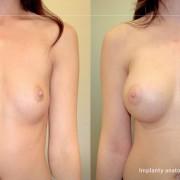 Powiększanie piersi – implanty