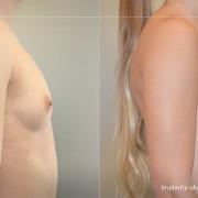 Powiększanie piersi implantami