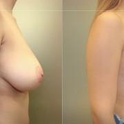 Redukcja piersi